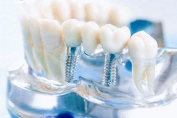 Возврат денег за лечение зубов пенсионерам